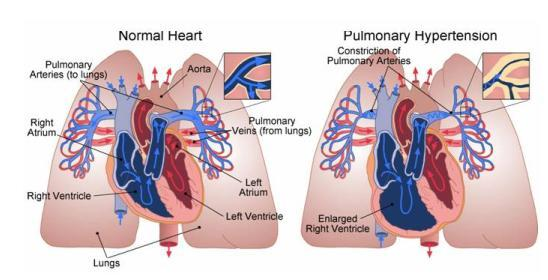 Signs of Primary Pulmonary Hypertension