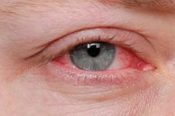 How Do i Get rid of Pink Eye