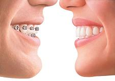 Invisalign Braces Cost in the Philippines