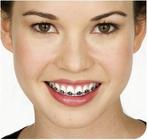 braces cost philippines