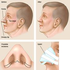 rhinoplasty nose lift without surgery philippines