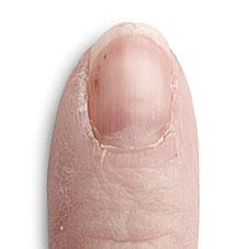 Nail Products for Peeling Nails