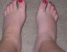 How to reduce swelling in feet postpartum