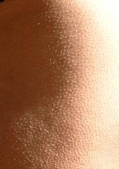 Cure Chicken Skin or  Keratosis Pilaris