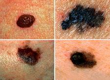 get rid of moles on face