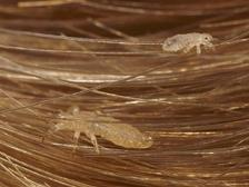 head lice picture