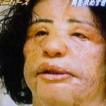 after photo - Plastic Surgeon Attempted to fix Hang Mioku's face