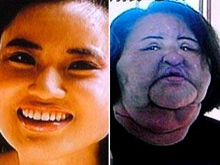 korean woman hang mioku after injecting cooking oil on her face