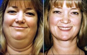Lose Double Chin Fat Fast