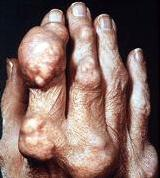 Prevention for Gout Attacks
