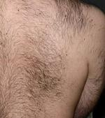Remove Unwanted Back Hair