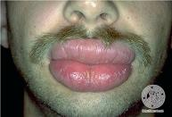 how to treat a swollen lips