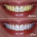 top over the counter whitening toothpaste