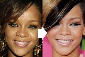 rihanna nose job before and after picture