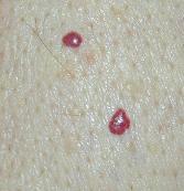 Cherry Angiomas Home Remedies