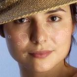 Get Rid of Blemishes Overnight