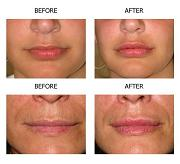 Permanent Lip Augmentation - Before and After Photos & Cost