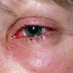 Treat Eye Irritation