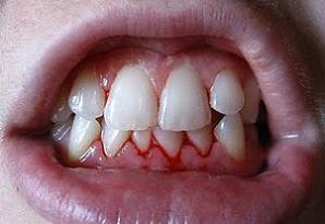 bleeding gums home remedies
