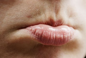 lips discoloration home remedies