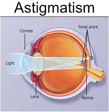 what is astigmatism, symptoms, causes, and treatment