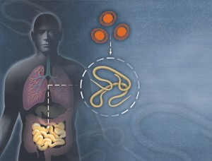 Ascariasis Causes, Symptoms, Treatment